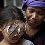 Help Cure Blindness